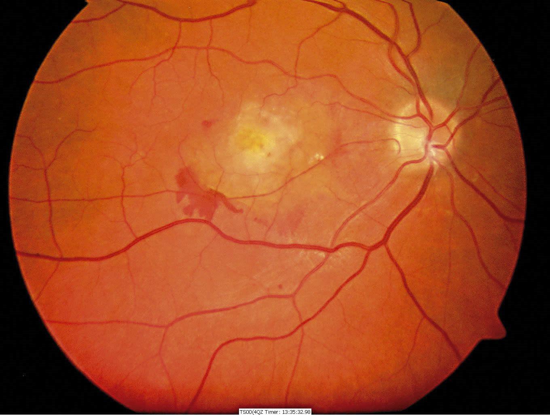Tăng huyết áp có thể gây xuất huyết võng mạc ở mắt